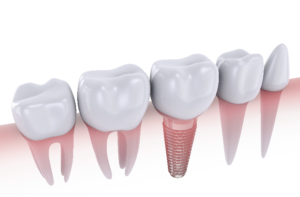Understanding Dental Implants as a Whole